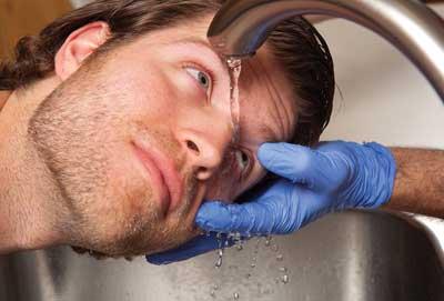 Ожоги глаза (термические и химические). оказание первой помощи при ожогах органа зрения