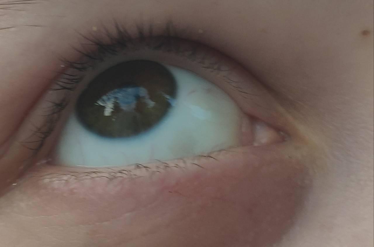 Красное пятно в глазу у ребенка - что это, лечение, причины, симптомы