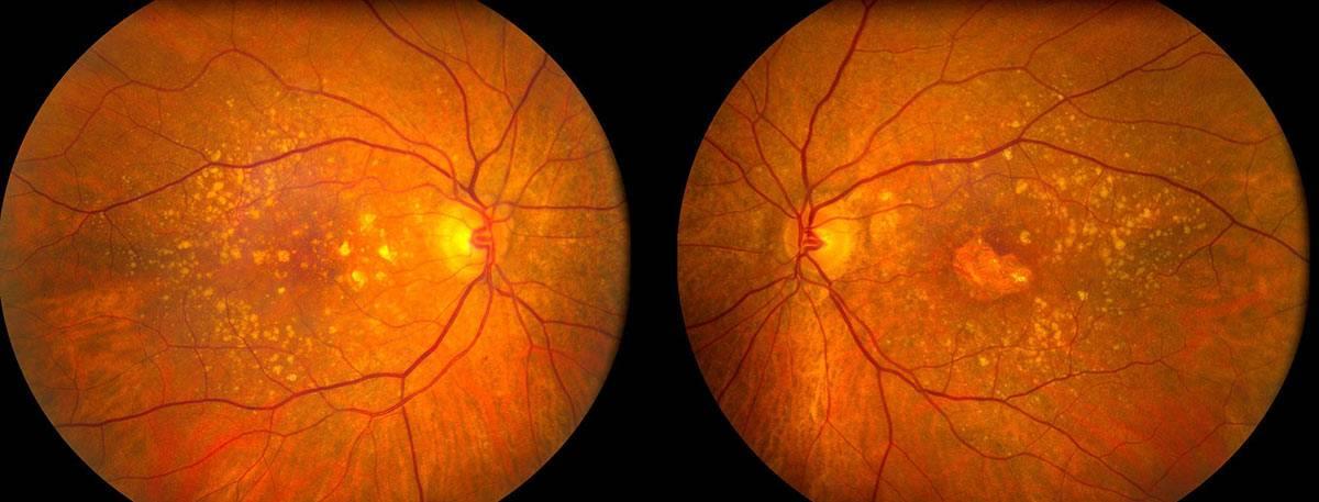 Дистрофия сетчатки глаза: что это такое, опасно ли это, причины развития, факторы риска, лечение и профилактика
