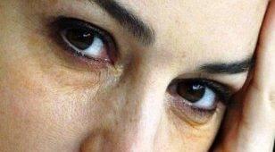 Желтые круги под глазами причины. отчего появляется жёлтая кожа вокруг глаз