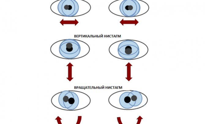 Что такое горизонтальный нистагм и как его лечить oculistic.ru что такое горизонтальный нистагм и как его лечить