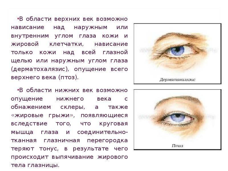 Глаз болит во внешнем углу глаза