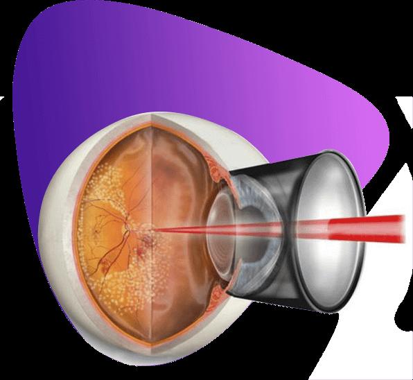 Лазерная коагуляция сетчатки при беременности