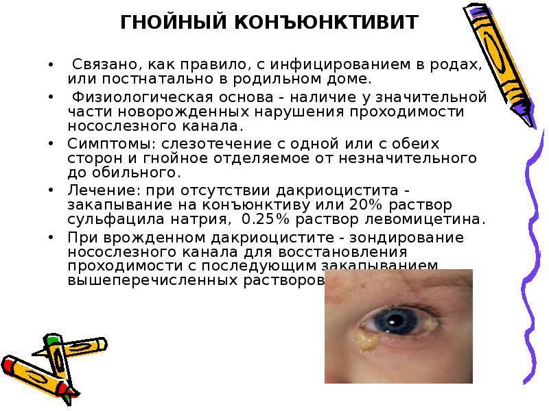 Бактериальный конъюнктивит у детей: лечение глаз, чем лечить ребенка 2 лет, терапия симптомов у малышей 3 лет