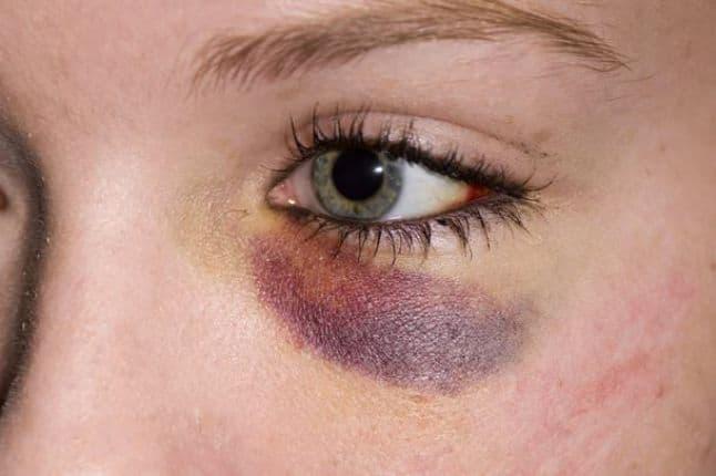 Сколько заживает и через сколько дней проходит синяк под глазом?