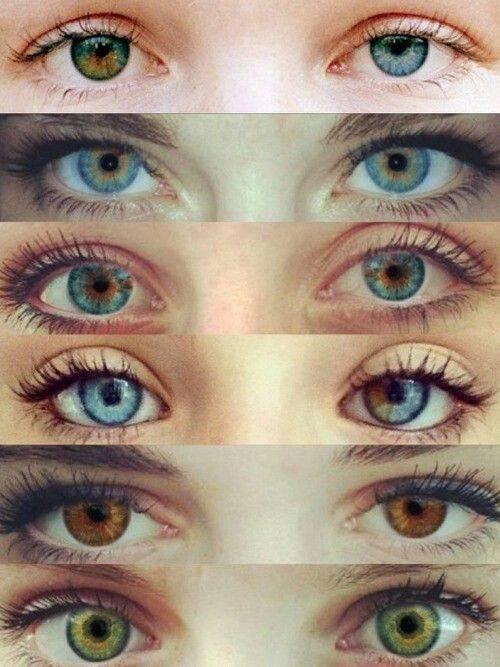Разный цвет (гетерохромия) глаз у людей: фото, виды, причины