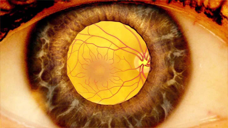 Что можно, что нельзя после лазерной коагуляции сетчатки – ограничения, рекомендации пациентам