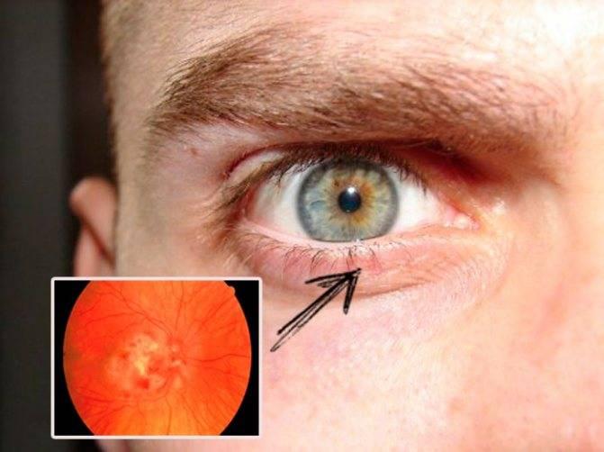 Ретинопатия сетчатки глаза: что это такое, симптомы и лечение