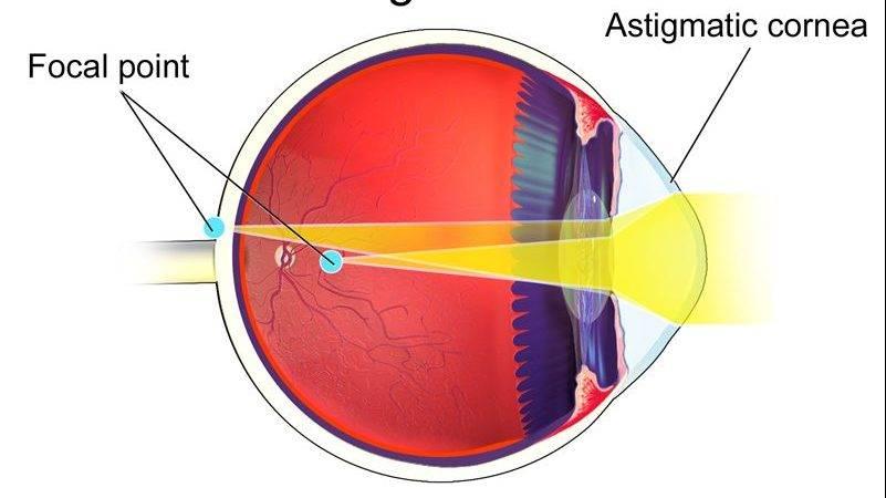Лазерная коагуляция сетчатки глаза при беременности, противопоказания