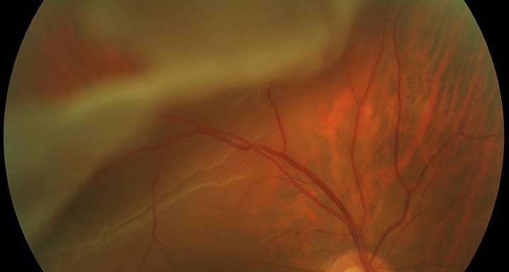 Что делать при первых симптомы отслойки сетчатки?
