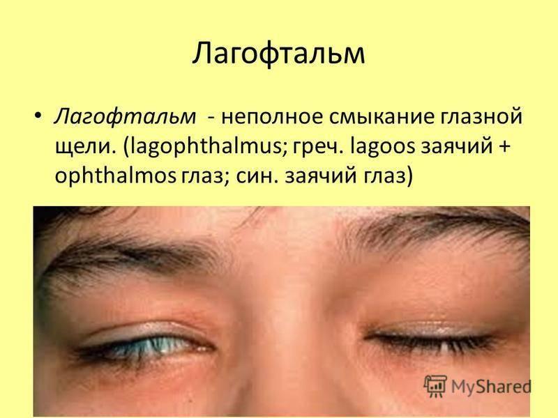 Лагофтальм: симптомы и лечение