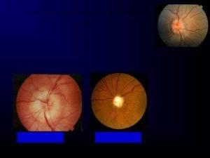 Неврит глазного нерва: симптомы и лечение воспаления зрительного нерва