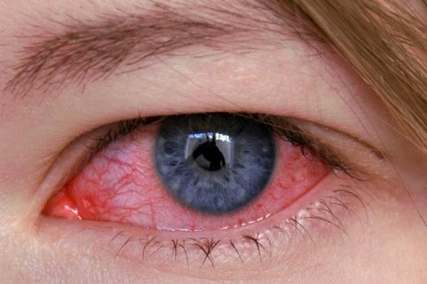 Основные симптомы и аспекты лечения блефароконъюнктивита