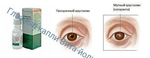 Вита-йодурол капли для глаз: инструкция, противопоказания, цена