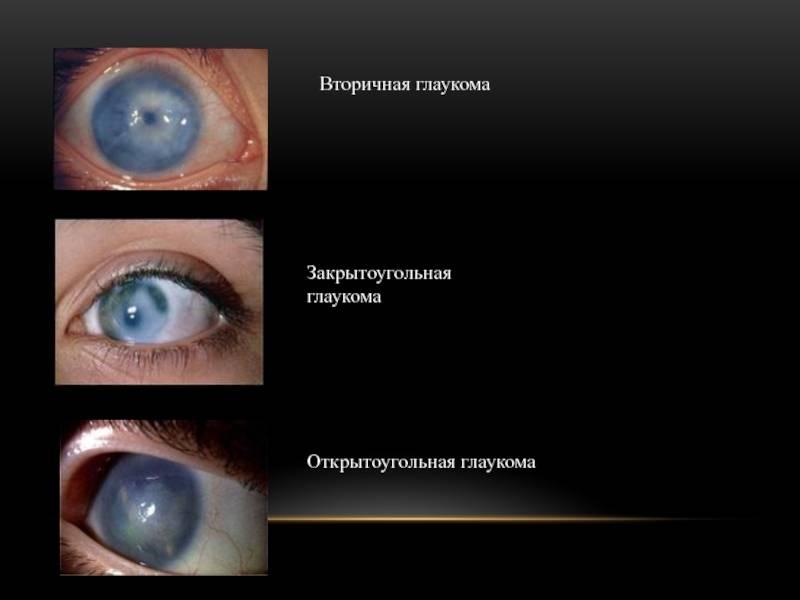 Узнай все о болезни открытоугольная глаукома: что это такое, симптомы, причины и как избежать заболевания?