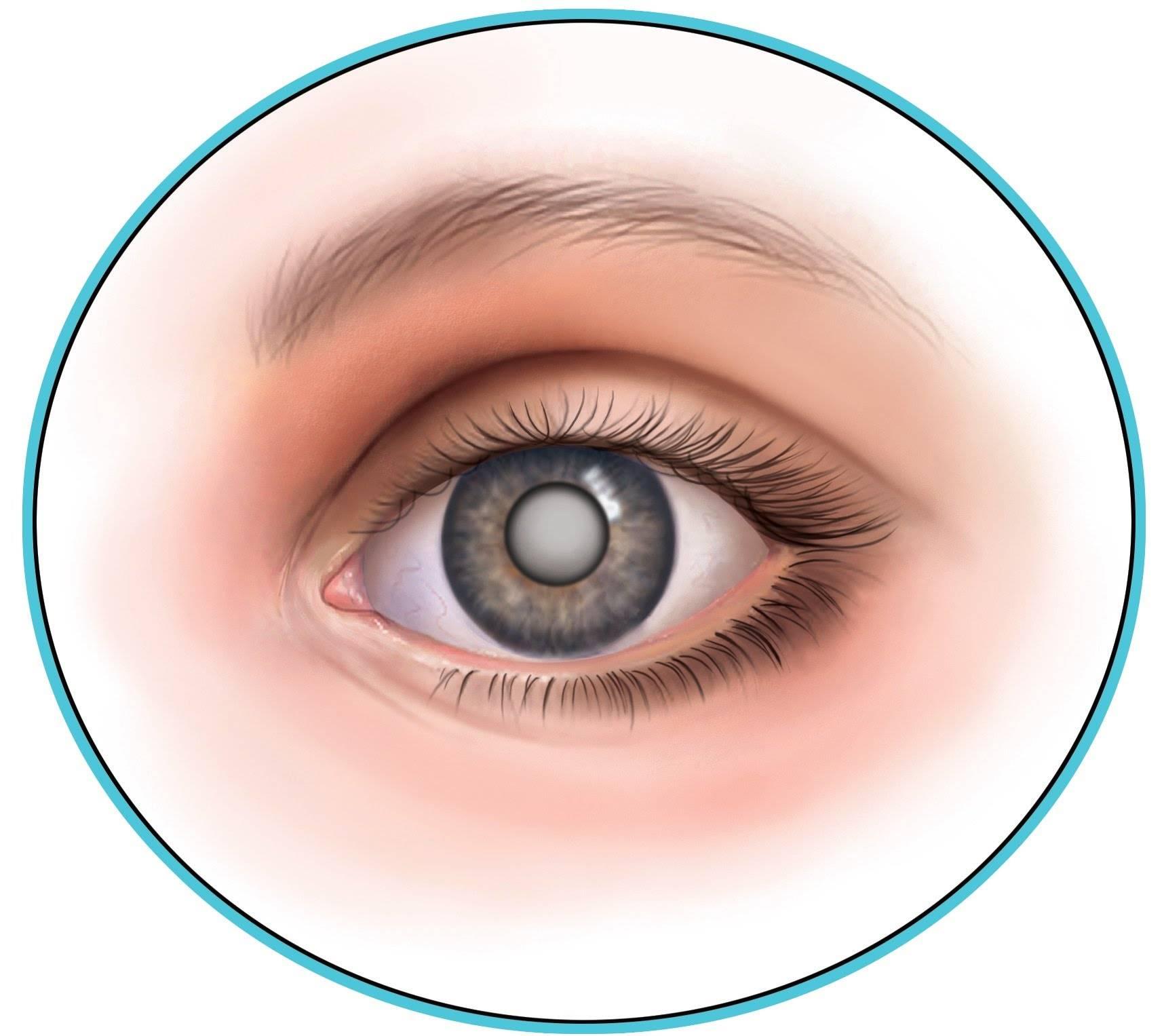 Помутнение хрусталика глаза: причины и лечение oculistic.ru помутнение хрусталика глаза: причины и лечение
