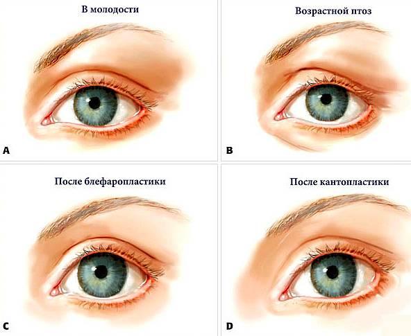 Глазные операции – какие они бывают