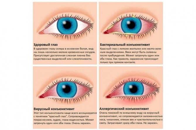 """Вспышки в глазах: причины, симптомы и методы лечения - """"здоровое око"""""""
