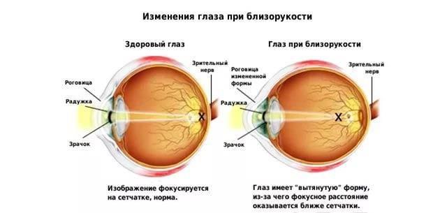 Близорукость на один глаз