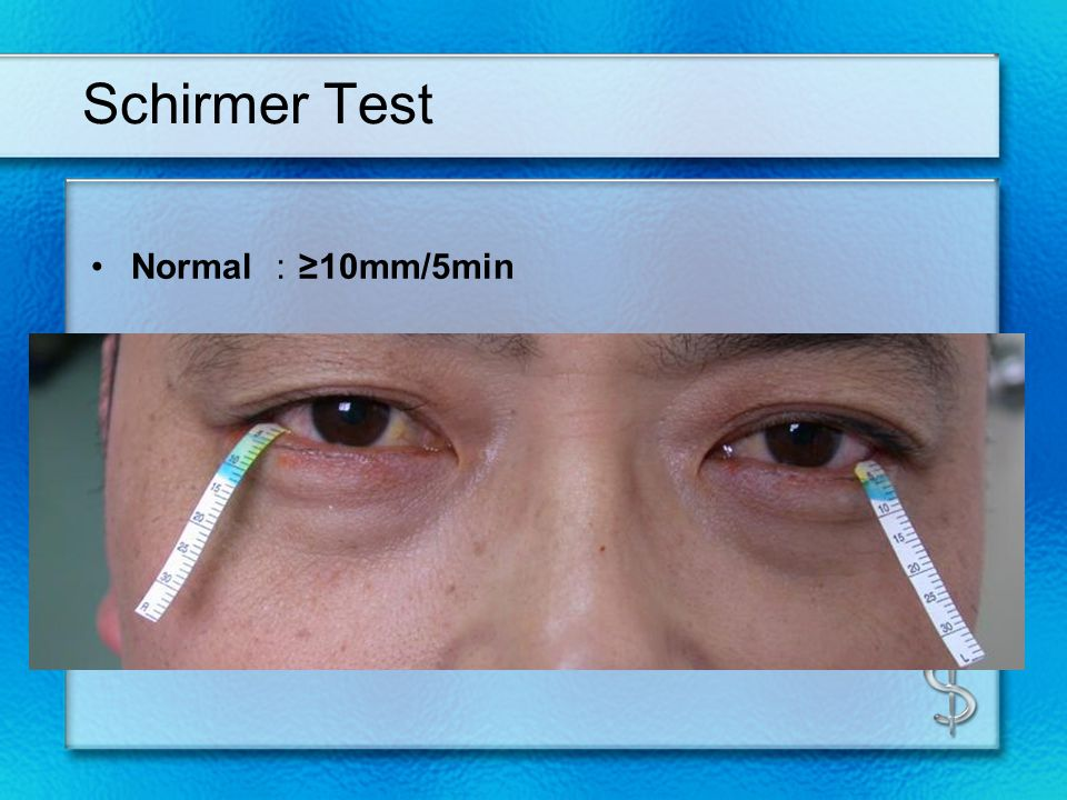 ? тест schirmer (тест на сухое глазу) - ваш доктор 2020