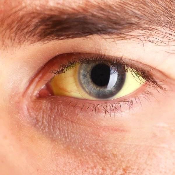 Желтые белки глаз у новорожденных - диагностика и методы терапии