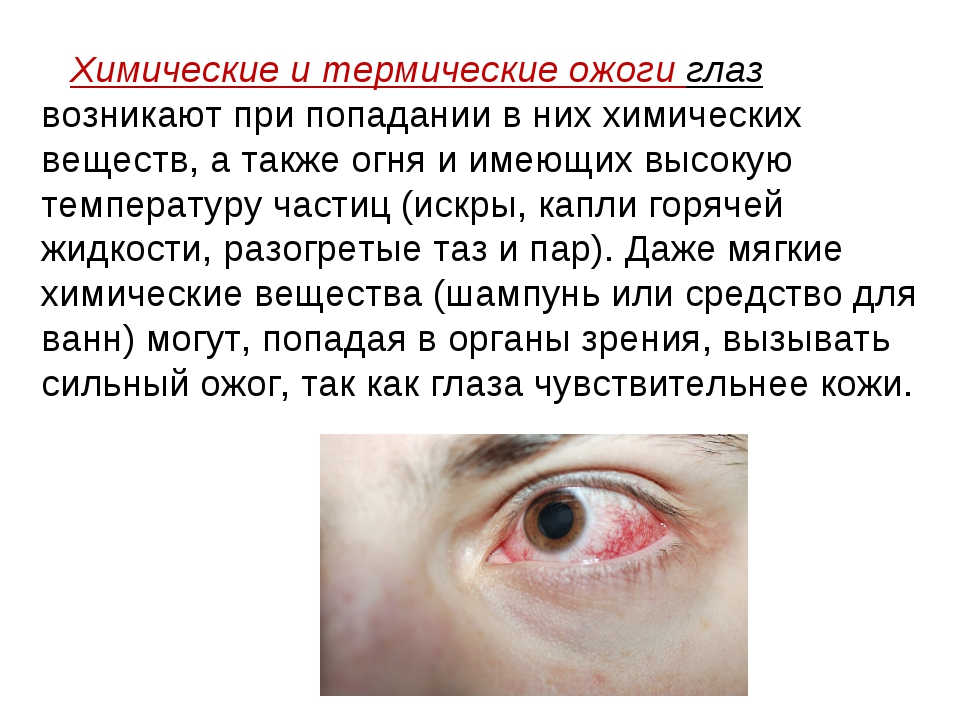 Что делать, если духи попали в глаз взрослому или ребенку?