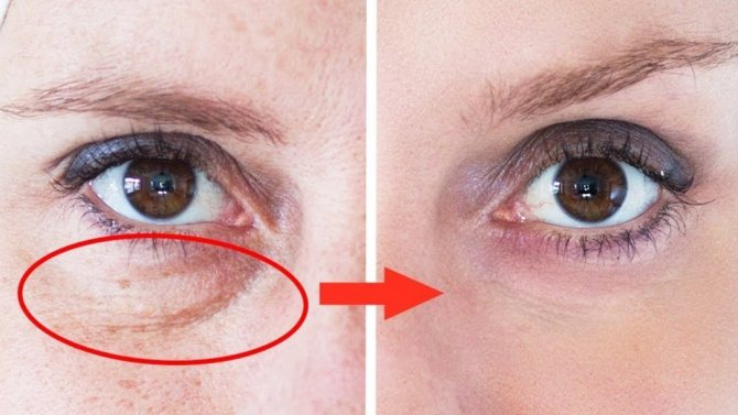 Поможет ли мезотерапия от синяков под глазами