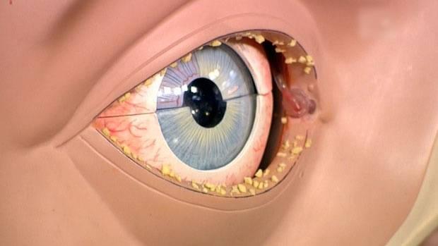 Выделения из глаз у ребенка при простуде: причины, почему гноятся глаза при орви и после сна