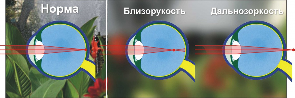Чем глаза мужчин отличаются от женских? | ваш зір