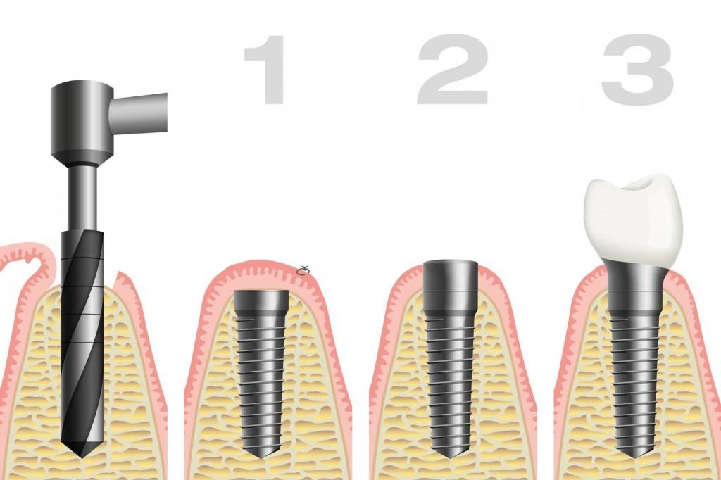 Задачи, решаемые с помощью германских дентальных имплантов icx