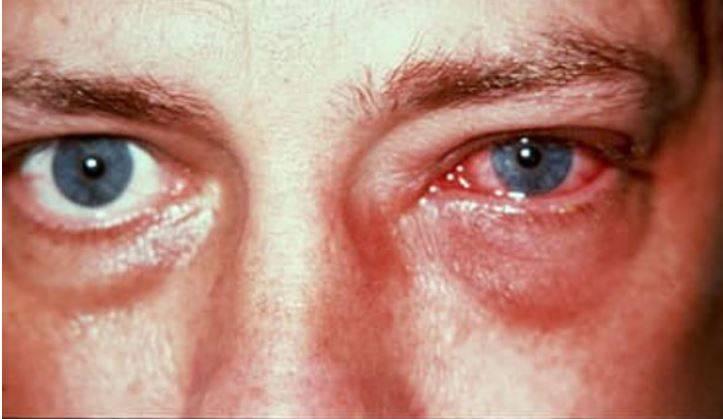 Появление герпеса в глазу человека: пути заражения, основные признаки и способы лечения патологии