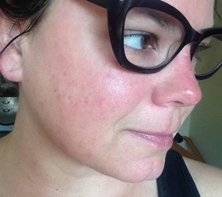 Аллергия на линзы — аллергия