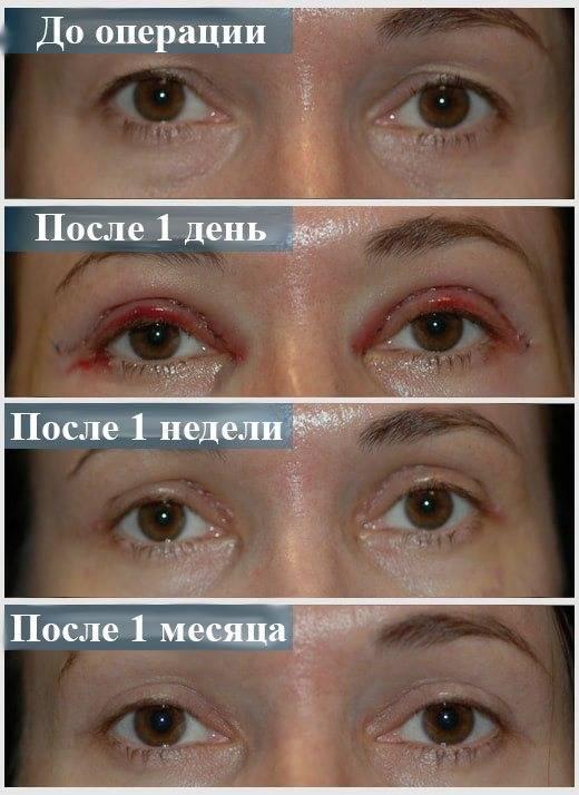 Как долго проходит синяк под глазом — через какое время он исчезает