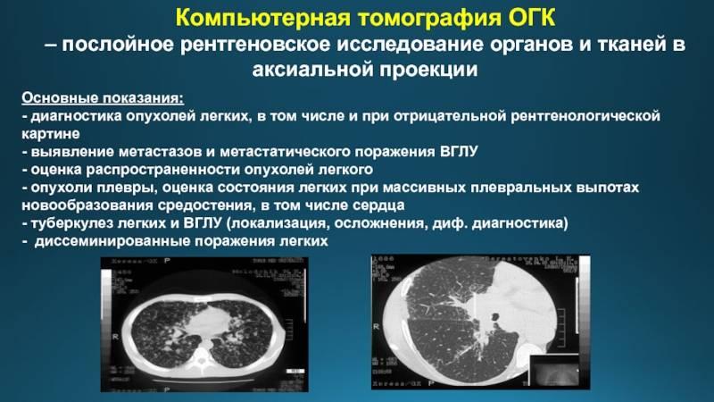 Оптическая когерентная томография глаза (сетчатки, слизистой), что это такое