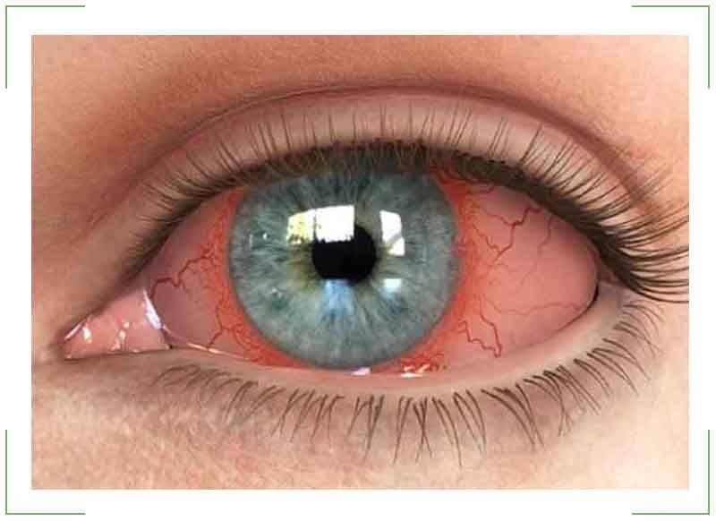 Увеит глаза: симптомы, лечение и причины возникновения