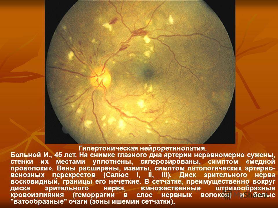 Сужены сосуды глазного дна: причины. расширение сосудов глазного дна причины