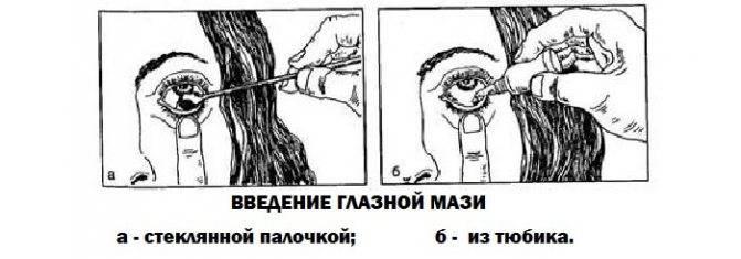 Применение капель и мази для глаз