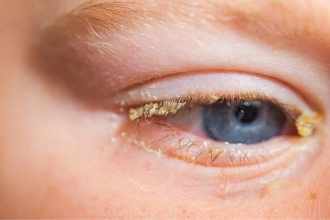 Режет и слезится глаз, отек, покраснел, жжет, гноится и закисает у взрослого: причины гнойных выделений из одного красного органа