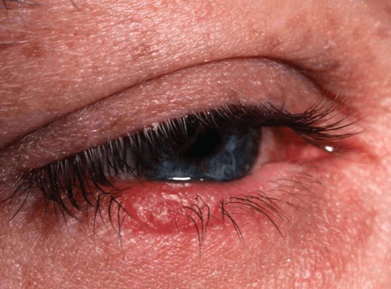 Блефарит – симптомы и лечение: что это за болезнь, в чем причины возникновения и чем лечить воспаление века