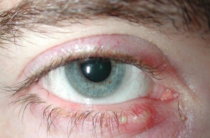 Застудил глаз как лечить