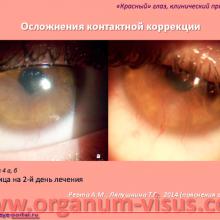 Лазерная коррекция зрения — осложнения и последствия