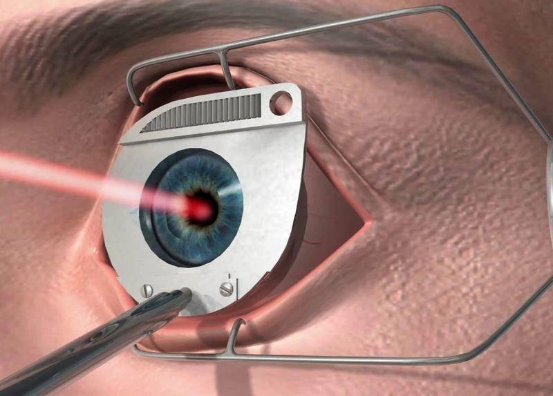 Ограничения и запреты после лазерной коррекции зрения