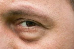 Мешки под глазами у мужчин — причины и лечение патологии