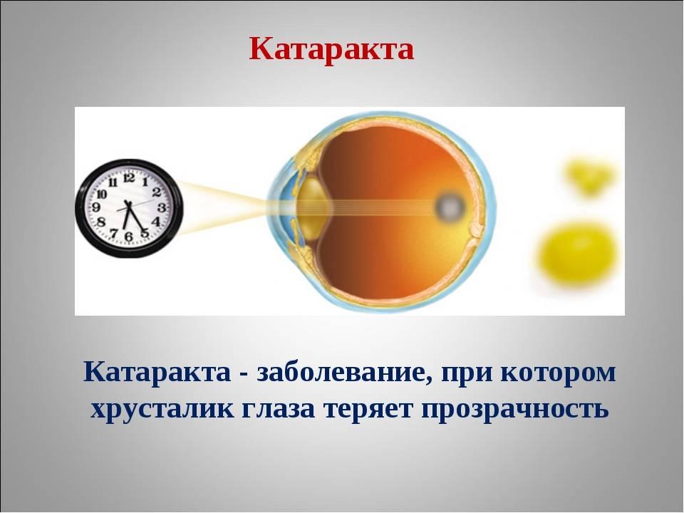 Ядерная катаракта: симптомы, причины, лечение и профилактика
