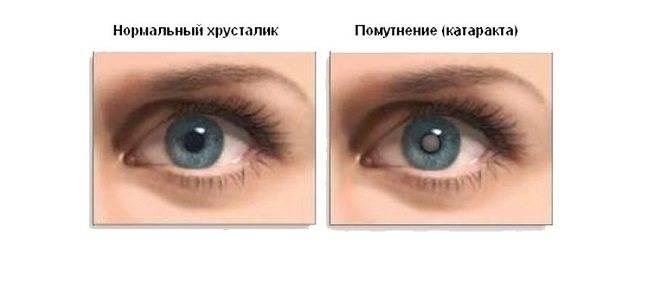 Симптомы глаукомы на ранней стадии