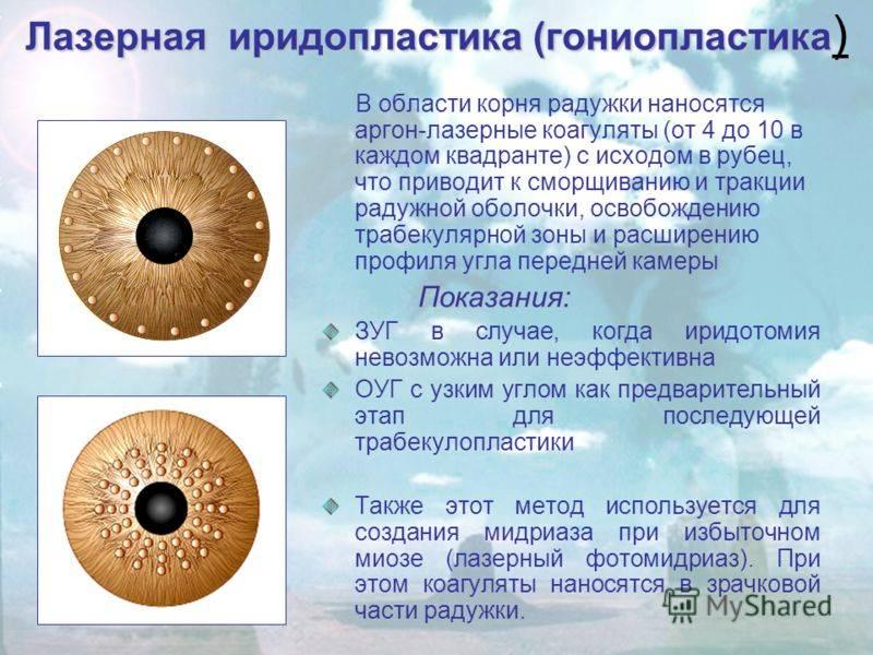 Показания к проведению лазерной иридэктомии