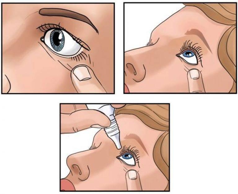 Как закапать капли в глаза ребенку: правила для новорожденного, что делать если малыш жмурится