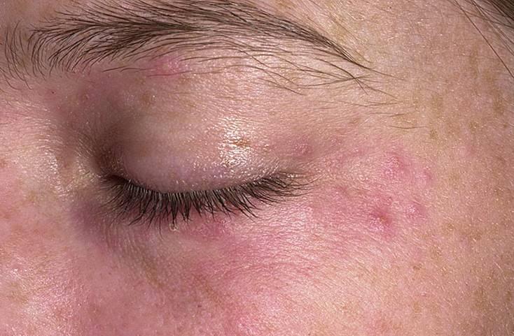 Рекомендацию по лечению дерматита на веках у взрослых и детей
