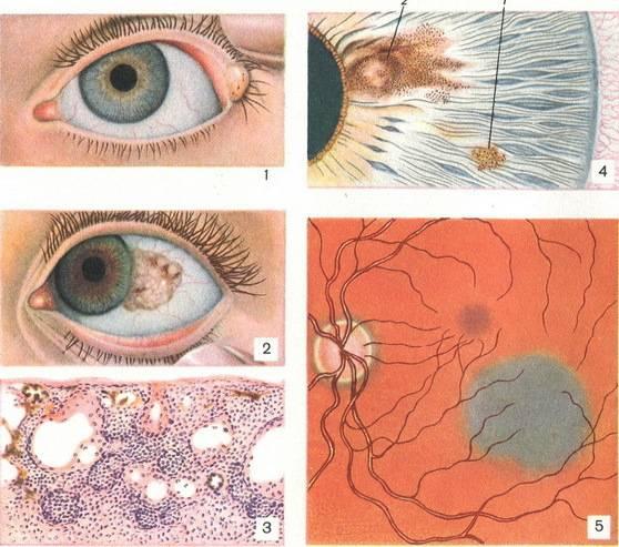 Желтые глаза у новорожденного – что означают желтые пятна на глазном яблоке