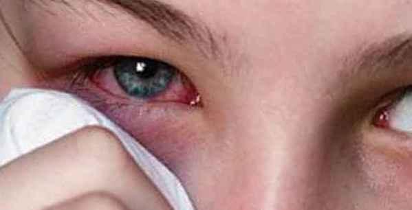 От сварки болят глаза - что делать? чем лечить ожог сетчатки глаза - sammedic.ru